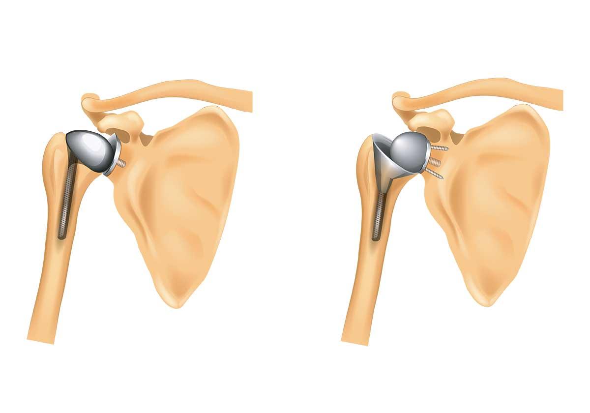 Prothèses anatomique et inversée